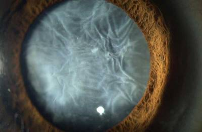 "An advanced ""Mature"" cataract"